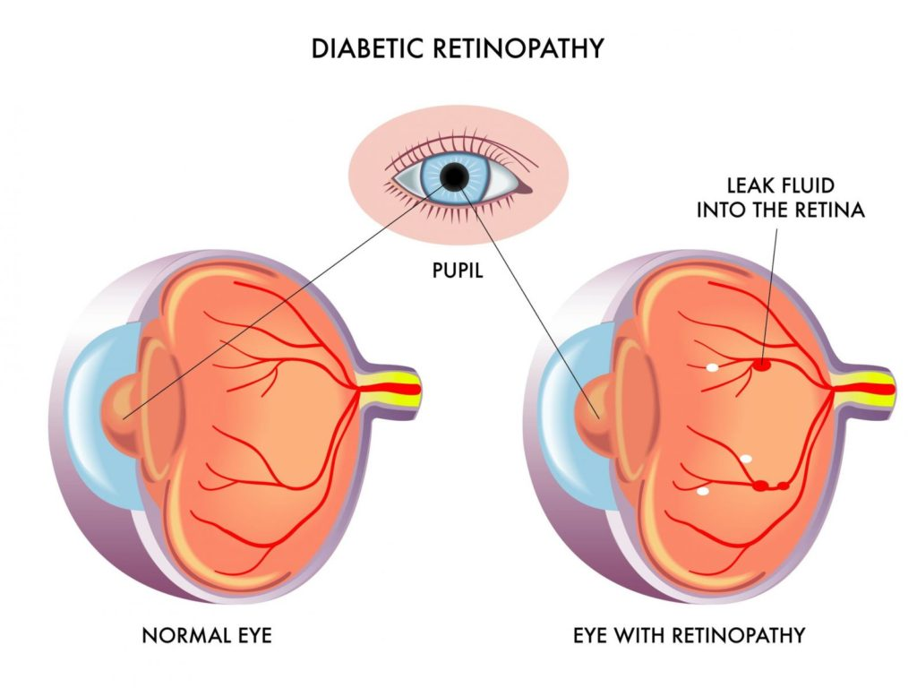 Diabetic Retinopathy Laser Surgery