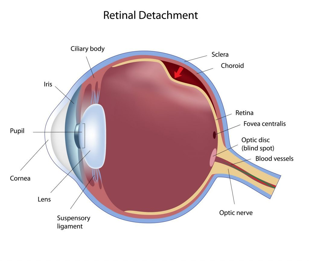 Retinal Detachment Surgery