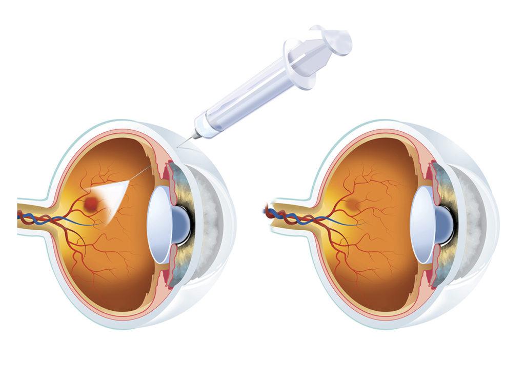 Avastin, Lucentis, & Eylea Injections